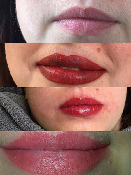 Vorher-Nachher-ArtofM-Lippen